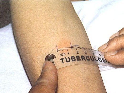 Туберкулез не только в легких!