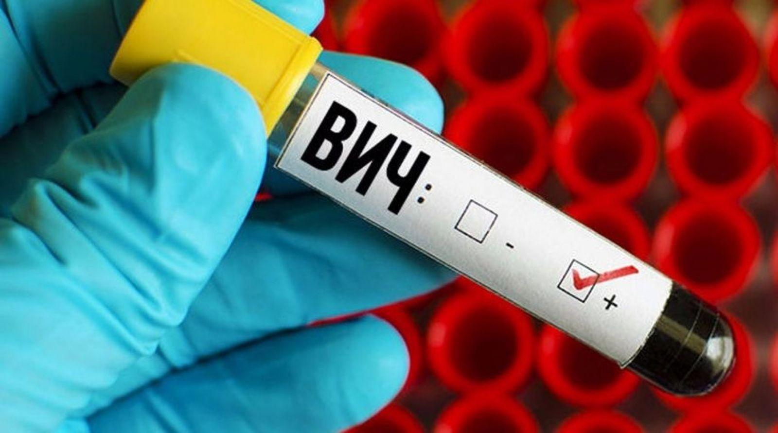 В Якутске с начала года выявлено 49 ВИЧ-инфицированных