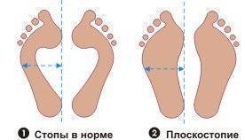 Плоская стопа, хрупкие кости
